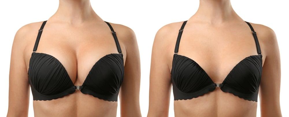 Breast Augmentation in Korea