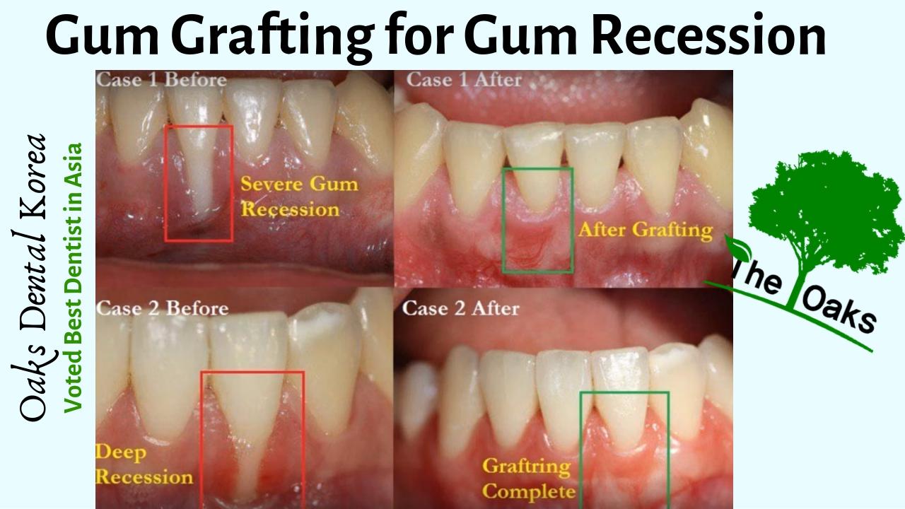 Gum Grafting for Gum Recession –Oaks Dental, Seoul, Korea