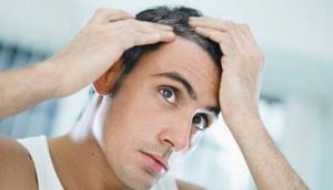 Bergmann Kord Hair transplants