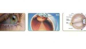 CEDS- The Center for Eye Diagnostics & Surgery