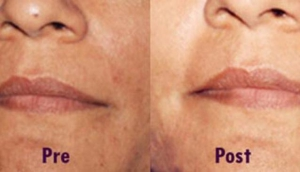Laser Cure Cosmetic Laser Clinic