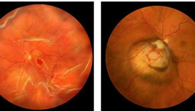 Shivam Eye Foundation