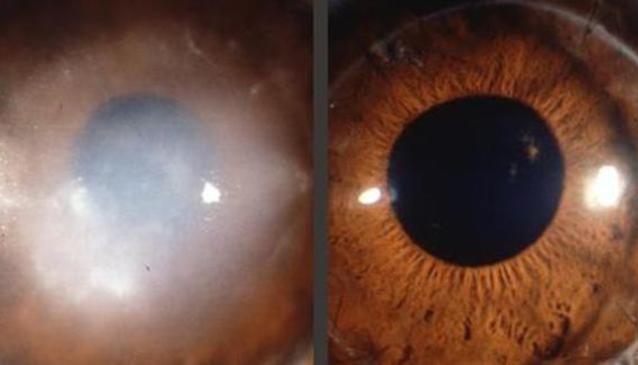 The Bhatti Eye Clinic