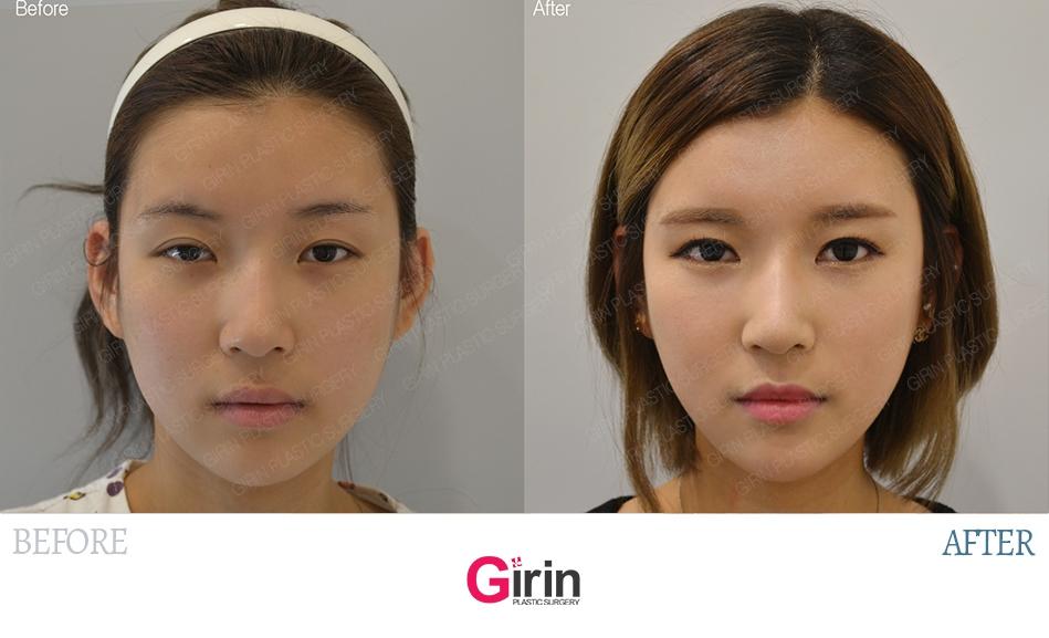 Girin Plastic Surgery