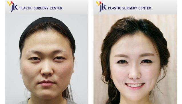 JK Plastic Surgery Center