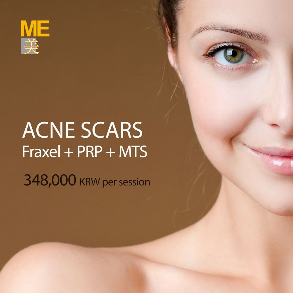 Introducing ME Clinic Acne scar care program