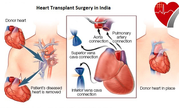 Best Heart Transplant Surgery at Affordable Cost in India